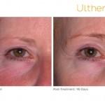 Eye Rejuvenation Options