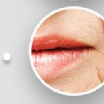 Lip and Mouth Rejuvenation Options