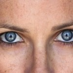Treating Age Spots